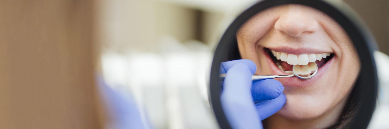 Zahnarzt Bonn-Poppelsdorf - Göbel - Ästhetische Zahnheilkunde